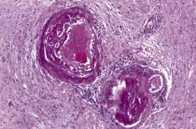 Small vessel disease