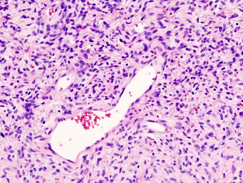 Solitary Fibrous Tumors(SFT)