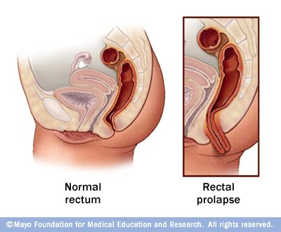Problems of the Female Reproductive System: Cervical P