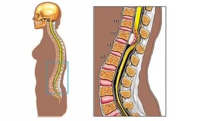 Spinal cord tumor
