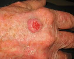 Squamous cell carcinoma of the skin