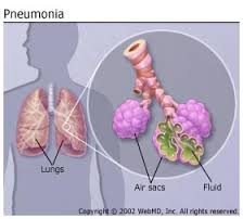 Streptococcus pneumonia infection