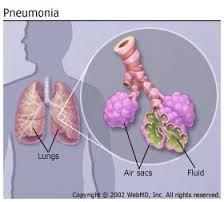 Streptococcus pneumonia infection