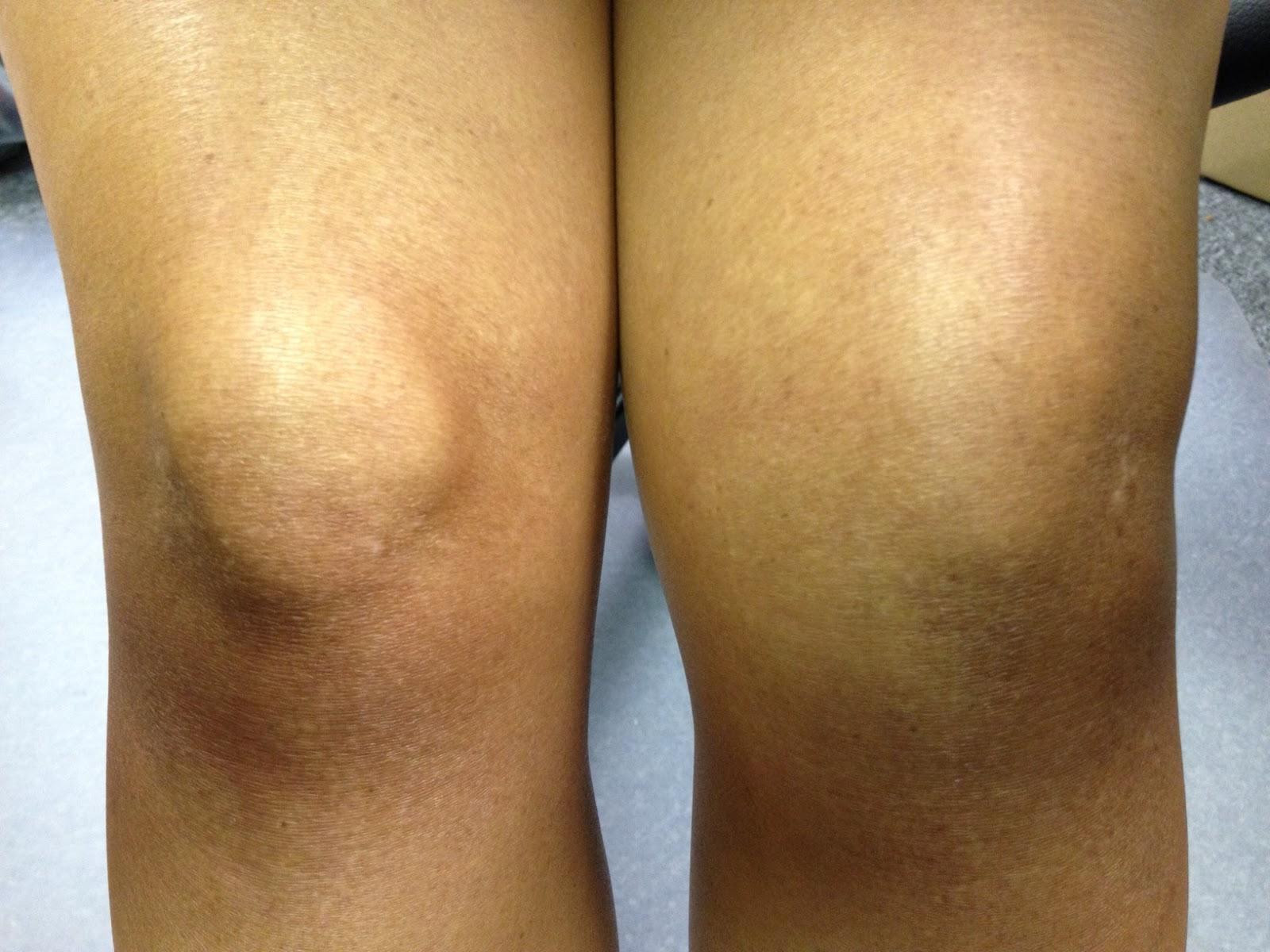 Как сделать так чтобы колени не болели 933