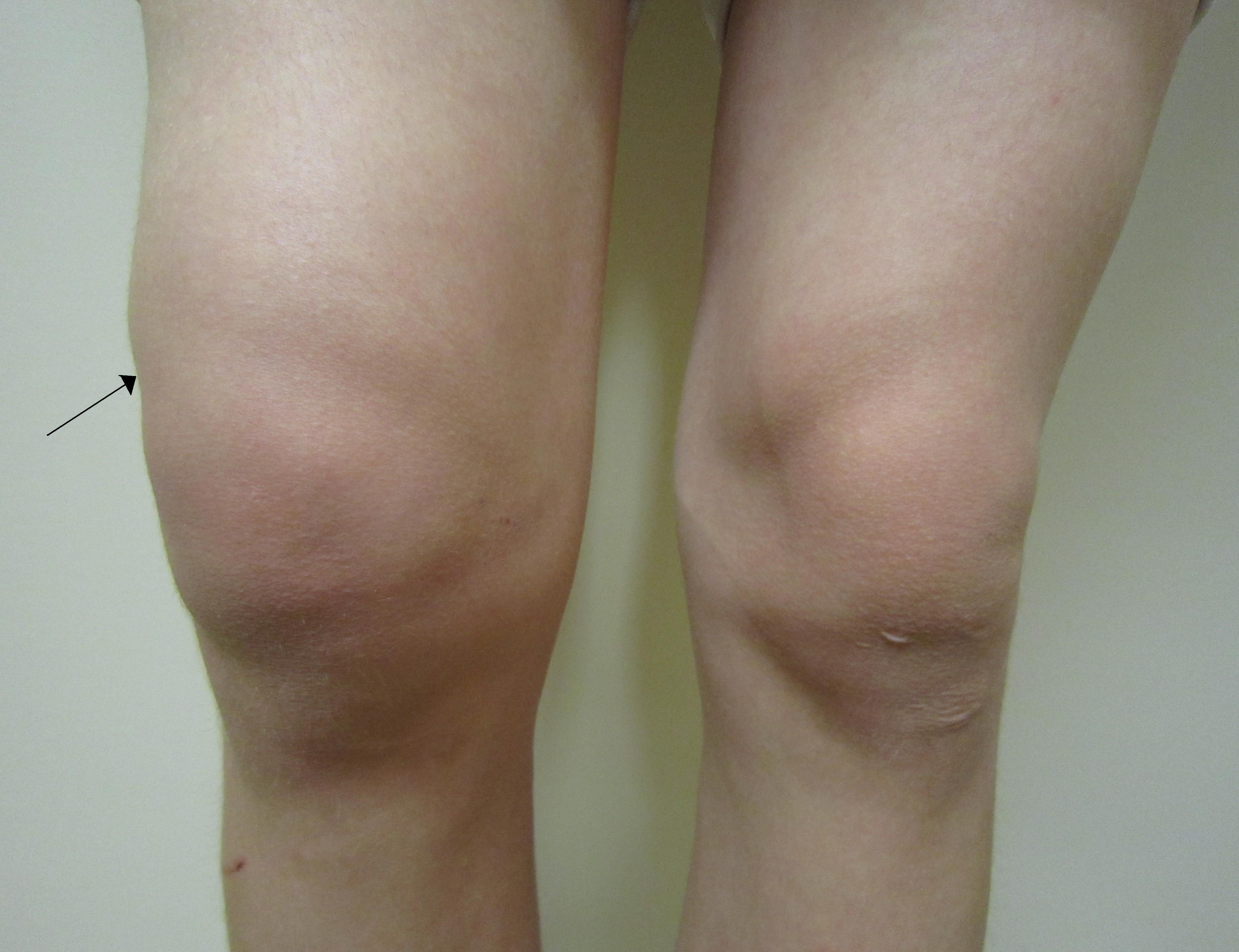 Swollen knee