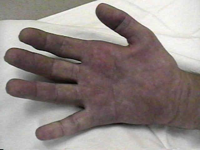 Syringomyelia
