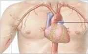 Takayasu arteritis