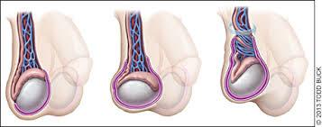 Testicular Torsion