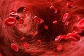 Thalassemia