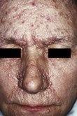 Tuberous sclerosis