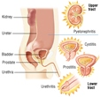 Urinary tract infections