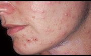 Varicella-Zoster Virus Infection