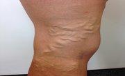 Varicose veins