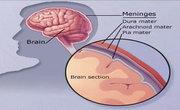 Viral Meningitis