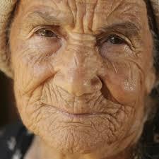 Wrinkle